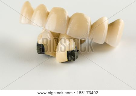 Metal-ceramic tooth crowns with locks for fixing removable prostheses