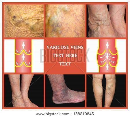 Varicose veins on a female senior legs. The structure of normal and varicose veins. Collage
