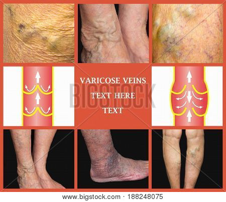 Varicose veins on a female and male senior legs. The structure of normal and varicose veins. Collage