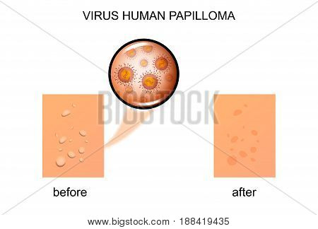 vector illustration of a human papilloma virus