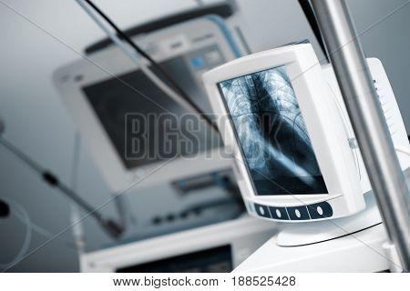 Modern computer in the hospital ICU ward