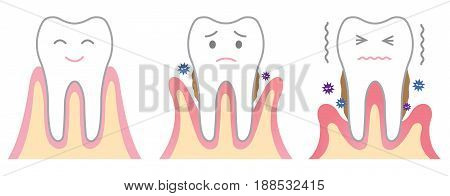 the stages of periodontal disease. dental care concept