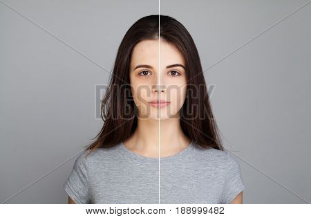 Young Model Woman with Skin Problem. Female Face Healthy and Unhealthy. Facial Treatment Skin Care Medicine and Cosmetology Concept