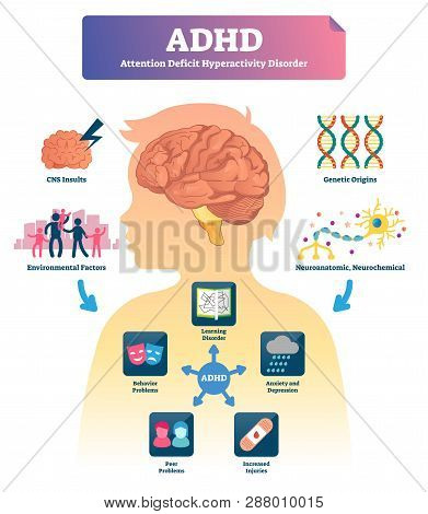 Adhd Vector Illustration. Labeled Attention Deficit Hyperactivity Disorder Scheme. Examples With Sym