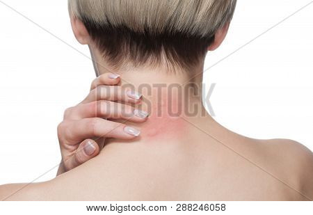 Girl With Blond Hair, Sitting With His Back Turned And Scratching Bitten, Red, Swollen Neck Skin Fro