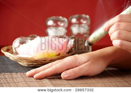 TCM Traditional Chinese Medicine. Hand applying moxa stick therapy, natural herbs in glass jars in background