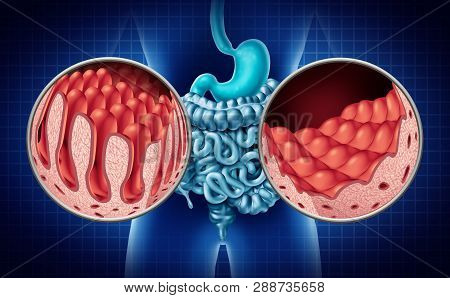 Celiac or coeliac,disease of the intestine anatomy medical concept with normal villi and damaged small bowel lining as an autoimmune disorder of the digestion system with colon and stomach as a 3D illustration. poster