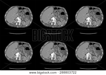 CT Scan - Computed tomography  of whole abdomen with contrast. Computed tomography CT whole abdomen in Axial. Part two poster
