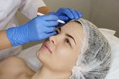 Aesthetic cosmetology. Facelift in spa salon. Beautician makes markup for injection. Smoothing of mimic wrinkles. poster