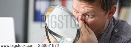 Close-up Of Middle-aged Male Person Squeezing Pimple On Forehead Looking In Table Mirror. Problemati