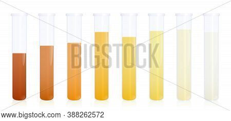 Urine Samples, Specimen Test Tubes With Different Colored Urine - Gradation From Dark Orange To Yell