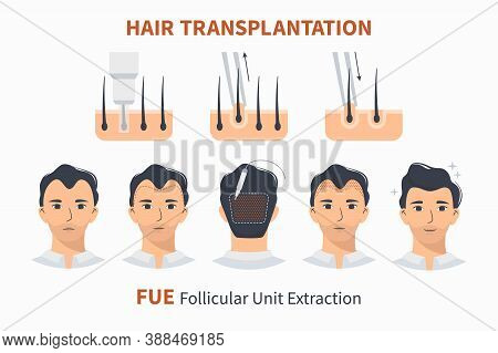 Type And Stages Of Hair Transplantation Fue Follicular Unit Extraction. Treatment Of Baldness, Alope