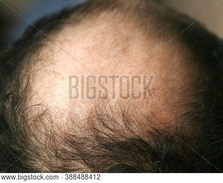 A Bald Spot On A Mans Head. Alopecia. Hair Loss