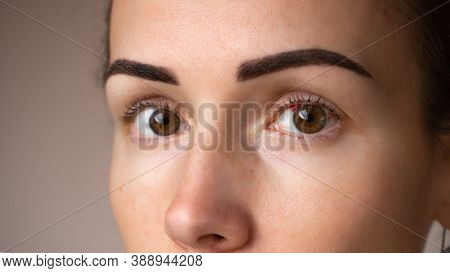 Close Up Photograph Of A Womans Eye. Red Girlish Eyes After A Tired Day At Work Or Illness, Or Surge