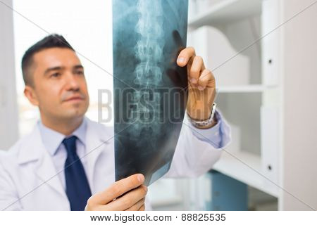 healthcare, rontgen, people and medicine concept - close up of male doctor in white coat looking at x-ray in hospital