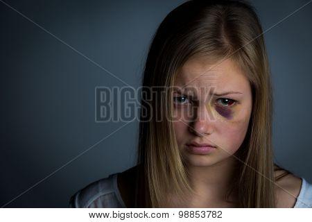 Bruised victim girl