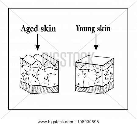 The skin is old and young. Aged and young skin sketch scheme. Vector illustration. Smooth and wrinkled. Skin layers