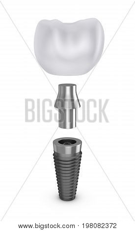 Tooth implant in disassembled form. 3d rendering.