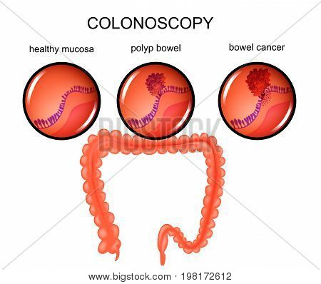 vector illustration of a colon polyp and cancer