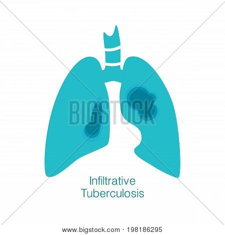 Vector silhouette medical illustration of human body organ - lungs with trachea. Logo template for clinic, hospital. Symbol for infiltrative tuberculosis. Health care of respiratory system.