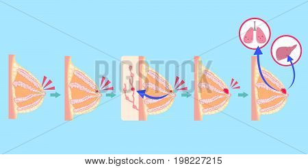 cartoon breast cancer on the blue background
