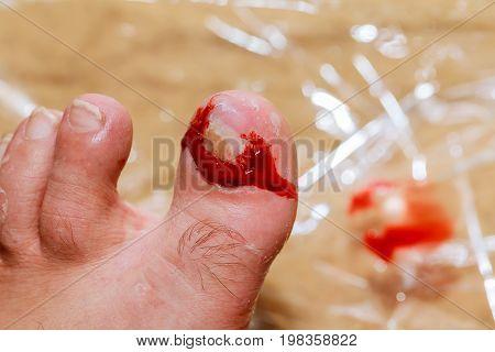 Leg Injury Torn Nail Blood