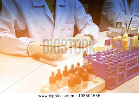 Close-up hand of Medical Technologist identification with biochemical for bacterial culture at microbiology room.