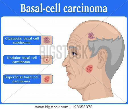 Three types of basal cell carcinoma on the face of elderly man