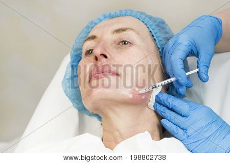 The process of cosmetic surgery of injection in the area of the lips of a woman