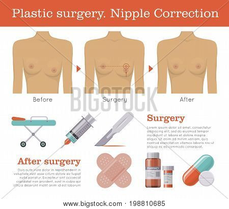 Nipple correction plastic surgery. Enlarged or inverted, asymmetrical, reconstruction procedure. Clinic poster. Female healthcare concept. Mockup vector illustration on white background