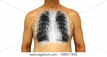 Human chest with x-ray of normal lung . Isolated background .