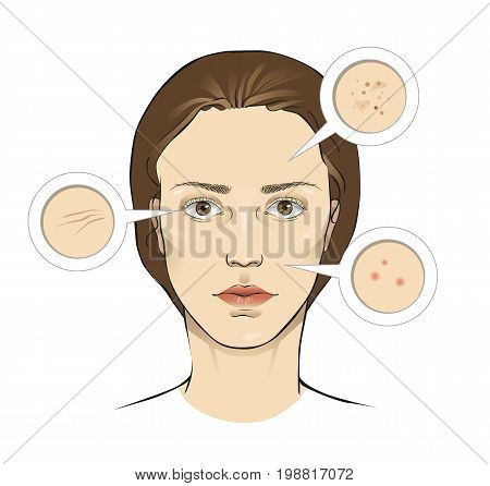 Woman's face skin problems vector illustration with close ups - wrinkles freckles pimples