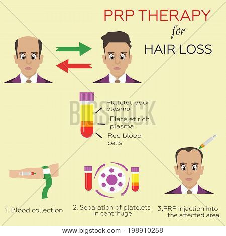 Effective treatment age of hair loss in men. Platelet rich plasma injection. PRP therapy process.  Meso therapy. Hair growth stimulation. poster