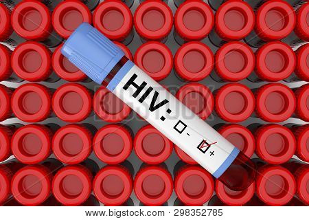 Blood Test Flask Tube With Hiv Positive Result Over Rows Of Test Flask Tube Extreme Closeup. 3d Rend