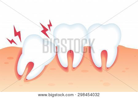 Vector Illustration Pain From Wrong Bite Flat. Dental Diseases And Pain From Abnormal Tooth Growth.