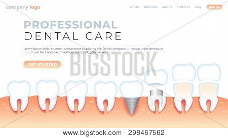 Vector Illustration Professional Dental Care. Natural Microflora Oral Cavity, Prosthetics Without In