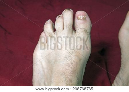 Front of man's left foot with damage to nails due to wearing tight fitting shoes poster