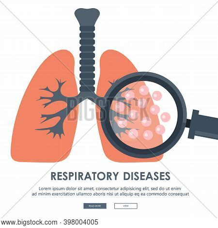 Human Lungs With Hand Holding Magnifying Glass Showing Viruses And Bacteria. Respiratory Diseases Co