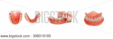 Dentures On A White Background. Close-up Of Dentures. Dentistry Is Conceptual Photography. Prostheti