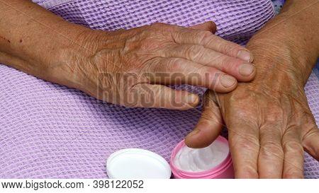 Female Arthritis Fingers Apply Moisturizer Cream Over Her Wrinkled Skin Of Hand Palm. Elderly Skin C