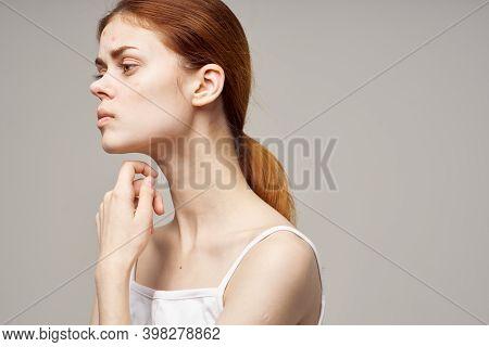 Woman Face Skin Problem Acne Acne Portrait Cropped View