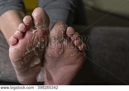 Stretched Out Feet Displaying Badly Exfoliating Skin