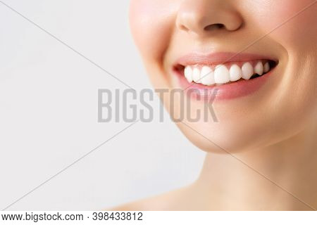 Perfect Healthy Teeth Smile Of A Young Woman. Teeth Whitening. Image Symbolizes Oral Care Dentistry,