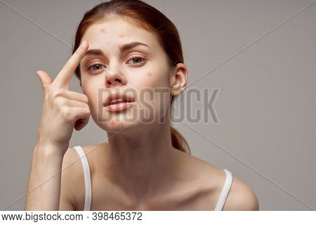 Woman Clean Skin Acne Acne Health Problems Dermatology