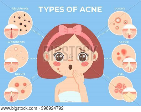 Girl With Acne. Young Unhappy Female Face With Skin Problems And Pimple Types Icons. Dermatology And