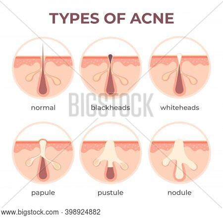 Acne Types Anatomy. Pimple Diseases Sectional View Blackhead, Cystic And Whitehead. Structure Of Ski