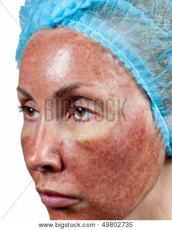 Cosmetology. Skin condition after chemical peeling TCA. The beginning of tearing away of the top burned layer poster