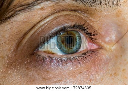 Close Up Of A Middle Age  Woman Green Eye With Skin Aging