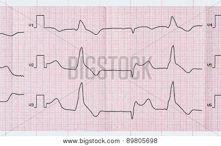 Tape Ecg With Macrofocal Myocardial Infarction And Ventricular Premature Beats