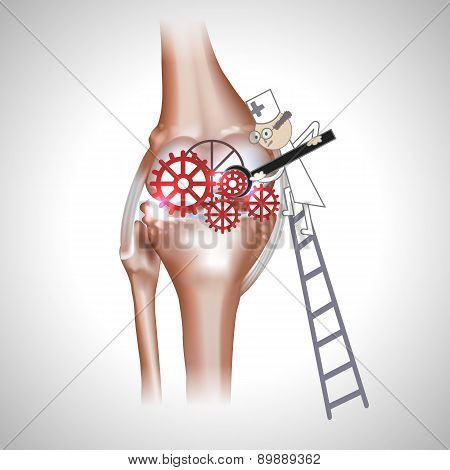 Knee joint abstract treatment procedure illustration. Doctor with screwdriver and gears in the joint poster